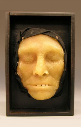 19th c. Wax Anatomical Model, Jaundice